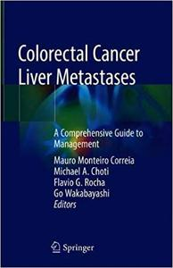 Colorectal Cancer Liver Metastases: A Comprehensive Guide to Management