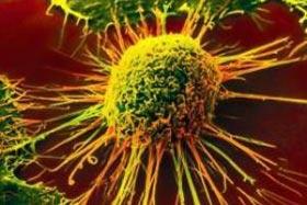 دانلود پاورپوینت سرطانهای شغلی(Occupational Cancers)