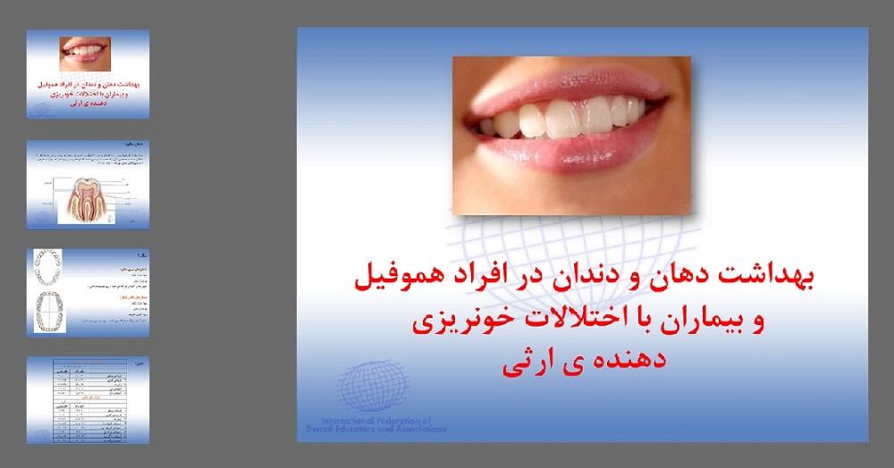 دانلود پاورپوینت بهداشت دهان و دندان در افراد هموفیل و بیماران با اختلالات خونریزی
