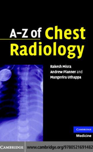 دانلود کتاب a to z chest radiology